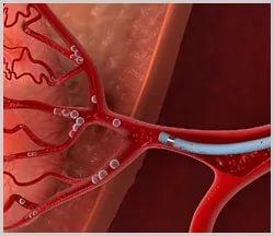 После эмболизации маточной артерии что может быть