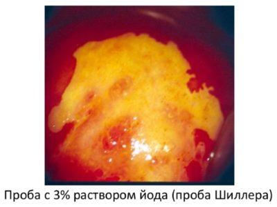 rasshirennaya-kolposkopiya-dlya-chego-i-kak-delayut-4